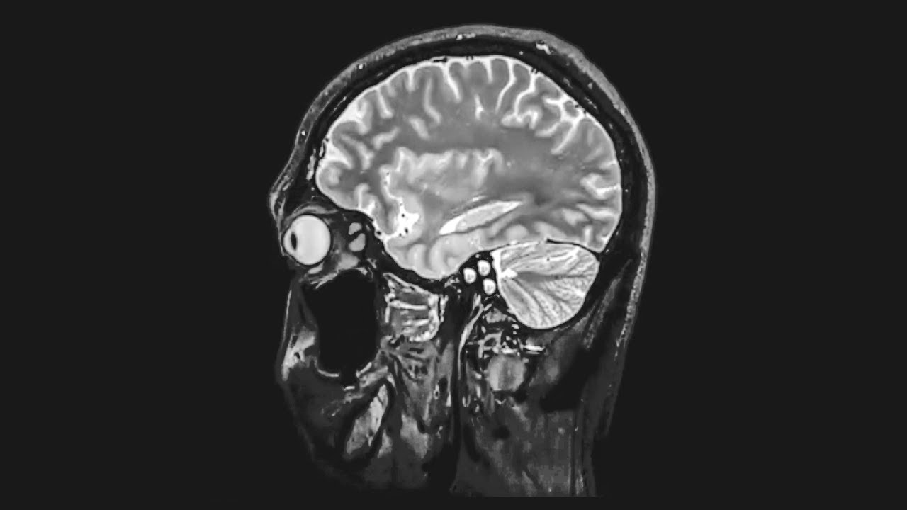A Grandma Ate 1 Pound Chocolate In 6 Hours This Is What Happened To Her Brain