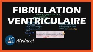 Fibrillation Ventriculaire: ECG, définition et traitement