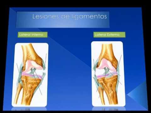 UABC Medicina Tijuana Imagenologia.Lesiones de Rodilla.7-Lesión ...