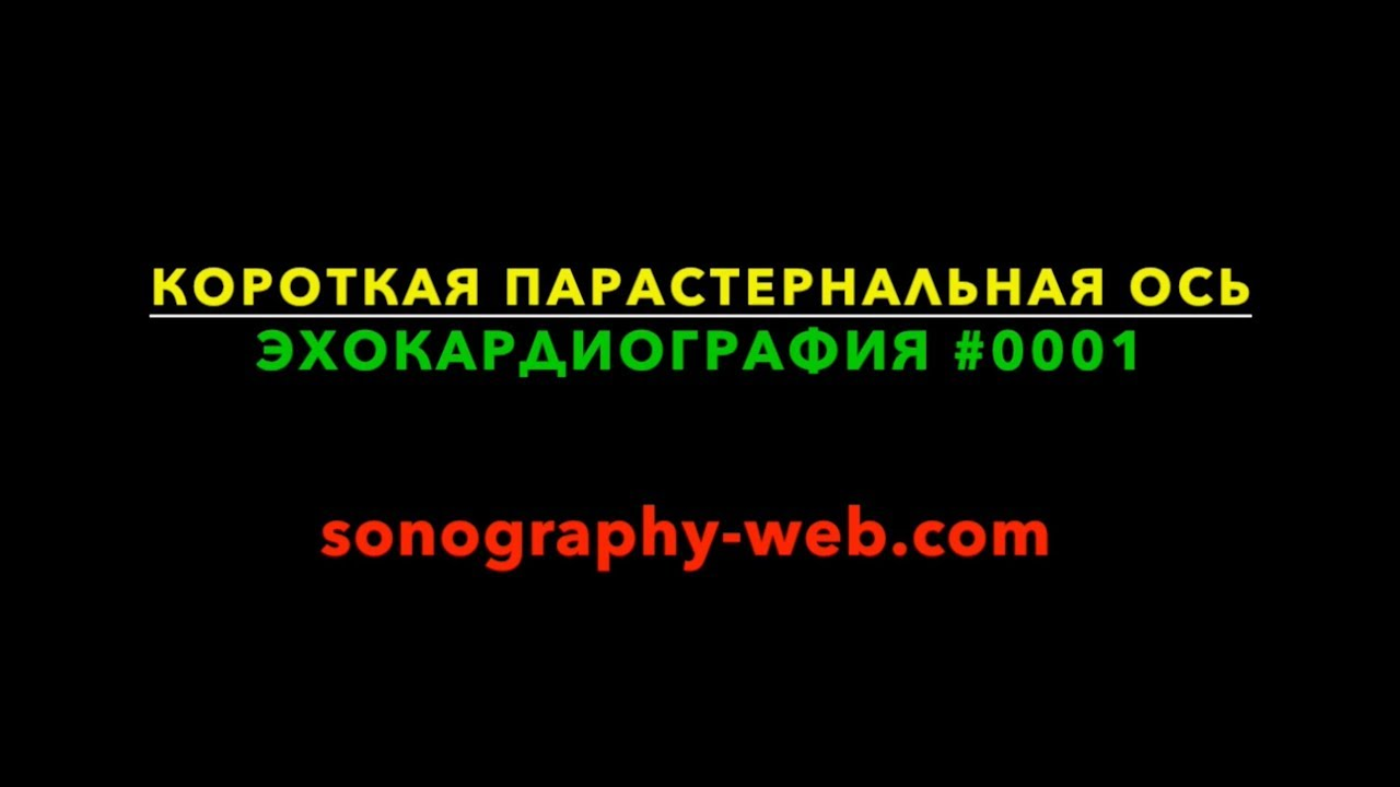 эхокардиография #0001 - короткая парастернальная ось УЗИ
