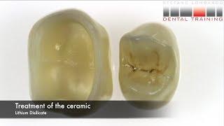 Resin Ceramic Bonding: Self Adhesive Cement