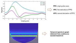 Photoplethysmography Based Stratification of Blood Pressure Using Multi-Information Fusion Artifi... screenshot 3