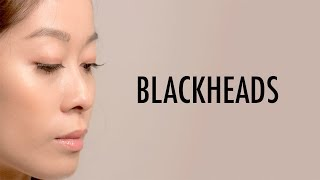 How To Get Rid of Blackheads At Home | Do's and Don'ts | Vivienne Fung