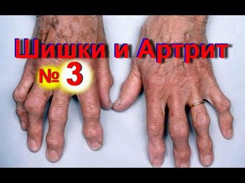 Артрит пальцев рук: симптомы на фото, лечение и профилактика