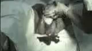 Видео ролик нормальных родов при головном предлежании  Посмотреть видео нормальных родов при головно(Ведение родов., 2017-02-05T16:01:21.000Z)