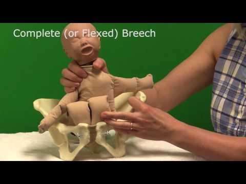 Breech Births - for Midwives
