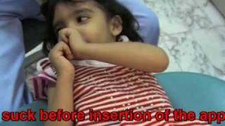 Part 2/3  Thumb Sucking; Effect, Child Behaviour, Habit Breaking Appliance.