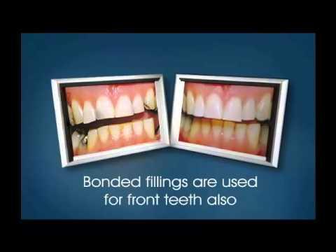 Bonding With White Fillings - Miskin Ajax Dental