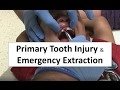 Primary Tooth Injury and Emergency Extraction