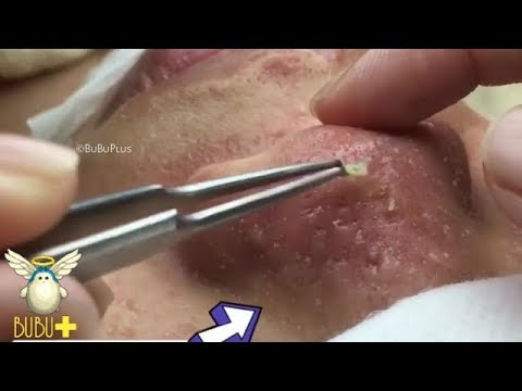 Nose Blackheads, Cystic Acne And Pimples Extraction On Face Acne Treatment  9348!