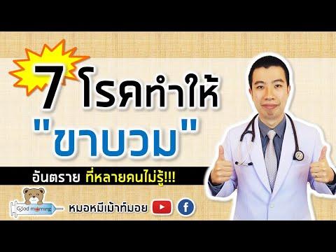 7 โรคทำให้ขาบวม อันตรายที่หลายคนไม่รู้ | หมอหมีมีคำตอบ