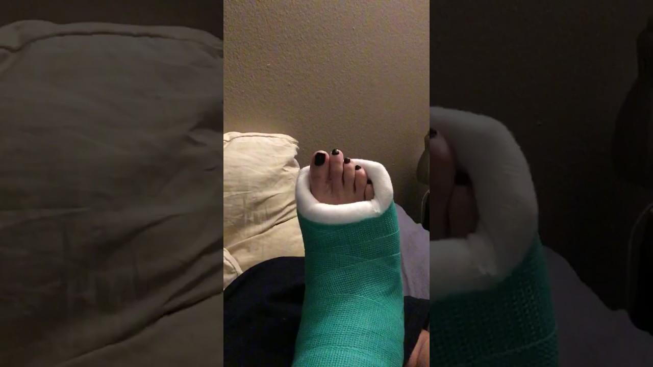 Frecklez Green Slc with toe plate up close. Frecklez cast