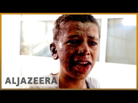 🇾🇪 \'Where are my brothers?\' pleads Yemen school bus attack survivor | Al Jazeera English