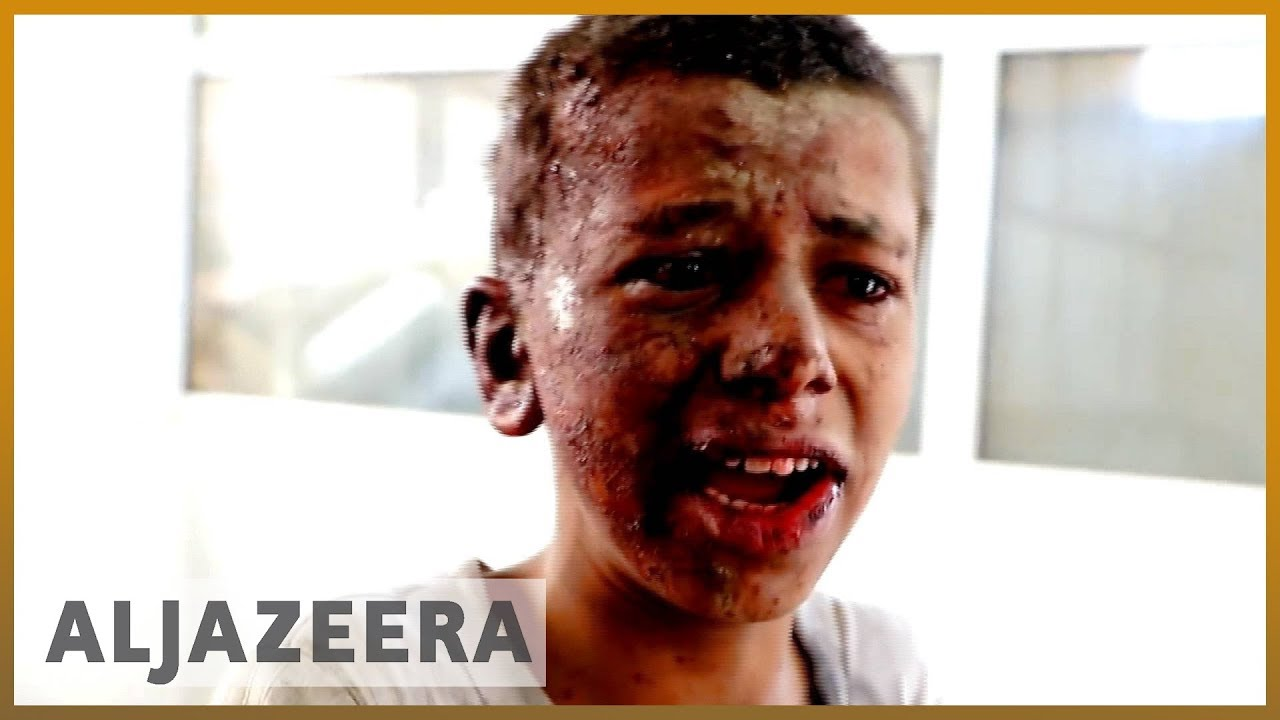 🇾🇪 'Where are my brothers?' pleads Yemen school bus attack survivor | Al Jazeera English