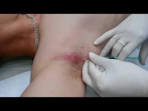 Чирей под мышкой (гидраденит) лечение
