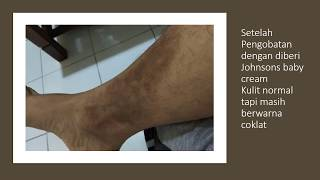 9 Jenis Dermatitis : Review Singkat Klasifikasi Dermatitis.