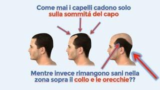 Repeat youtube video ***Rimedi per la caduta dei capelli***  Questo é il miglior metodo anti calvizie in assoluto!!