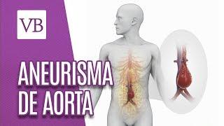 Inspeção e palpação de Aneurisma de Aorta Abdominal. Visite também minha página no Daily Motion:....