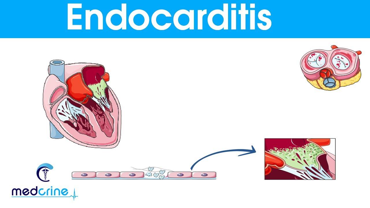Endocarditis : causes, symptoms, pathophysiology ...