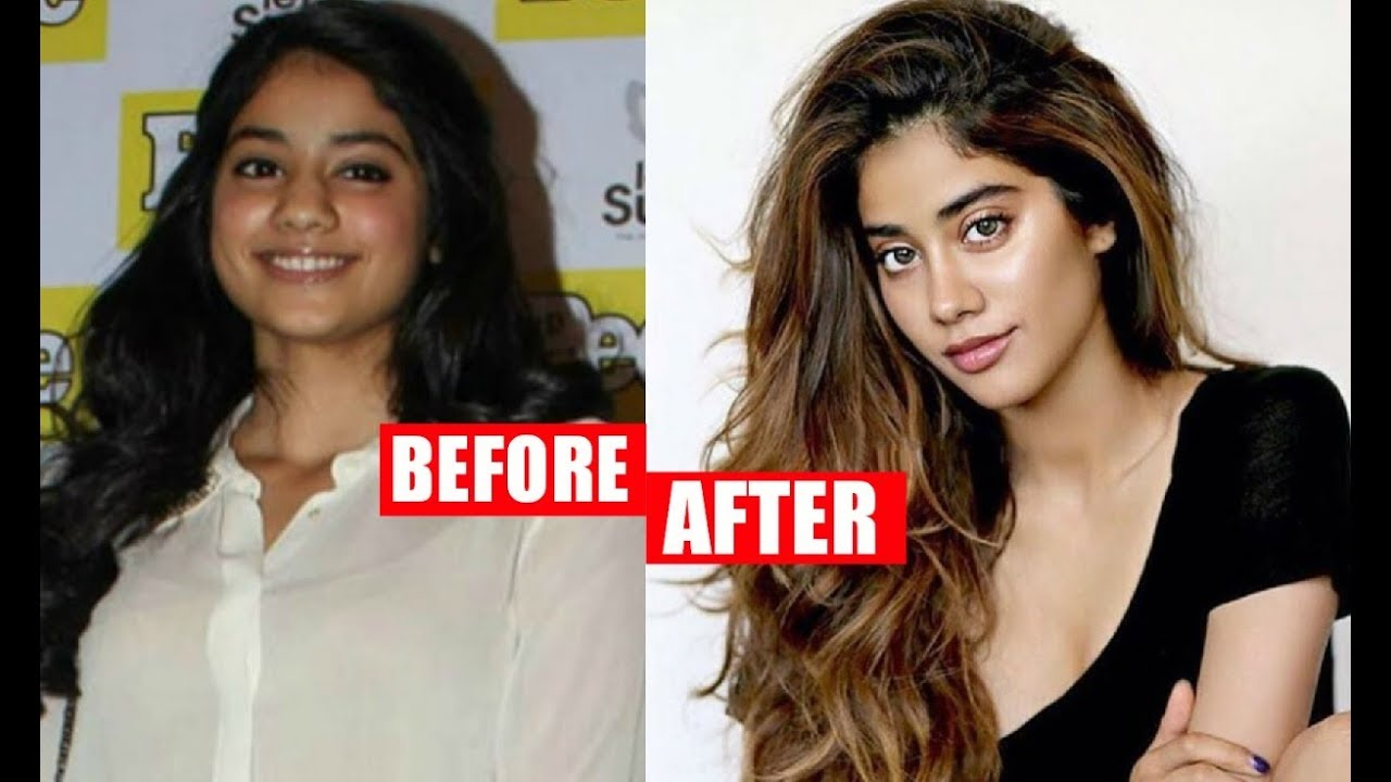 Download Sridevi Daughter Jhanvi Kapoor Plastic Surgery Before And After