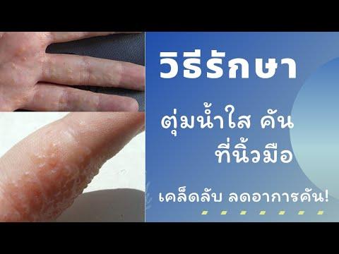 โรคตุ่มน้ำใสที่นิ้วมือ เกิดจากอะไร รักษายังไง | หมอยาพาคุย