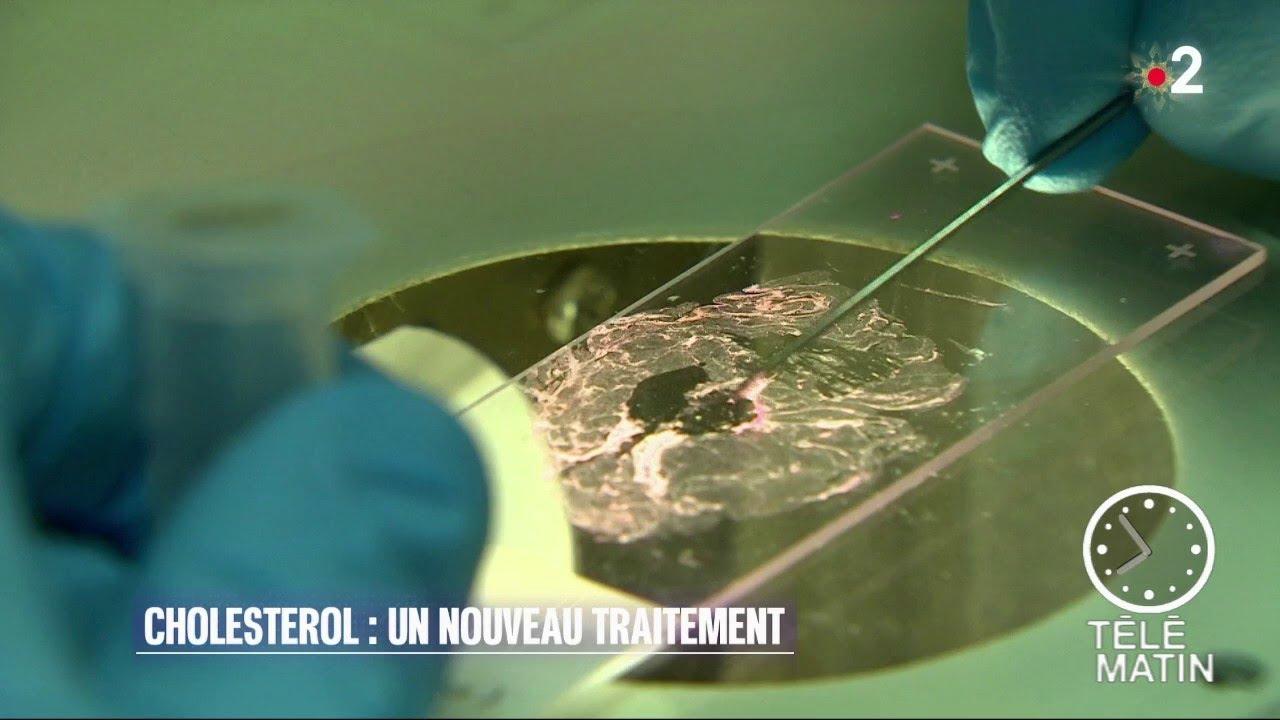 Cholestérol : de nouveaux médicaments arrivent en France
