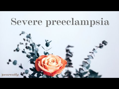 The Variations Between Mild and Severe Preeclampsia