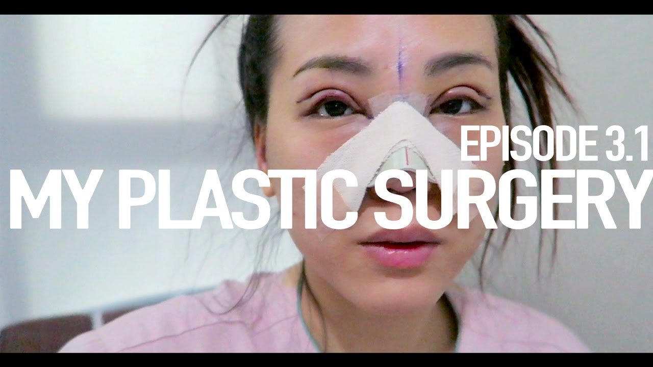 EP 3 1| Revision rhinoplasty & Incision Double Eyelid with Ptosis correction