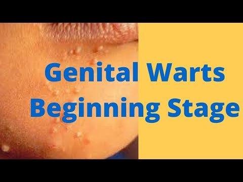 Genital Warts Beginning Stage from YouTube · Duration:  2 minutes 18 seconds