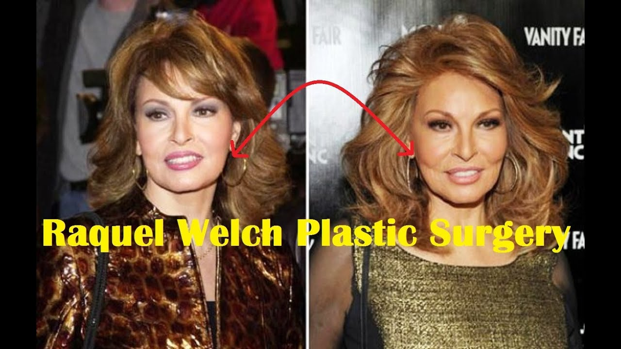 raquel welch plastic surgery before and after - youtube