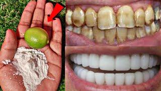 सिरफ 2 मिनट में गंदे पिले दाँतों को मोतियों की तरह सफेद और चमकदार बना देगा ये नुस्खाTeeth Whitening