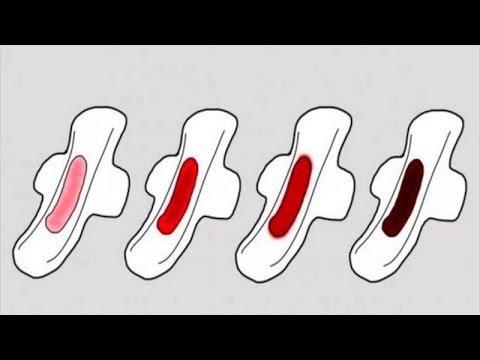 Adet Kanının Rengi, Sağlığınız Hakkında Çok Şey Söylüyor