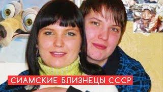 Один живот на двоих: Как живут сиамские близнецы, удачно разделенные в СССР