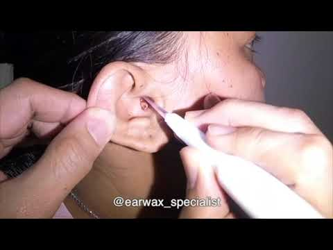 Woman's Nasty Earwax Removed Slowly but Surely