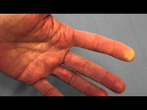 Raynaud's Phenomenon (Reduced Blood Flow) Of The FIngertip