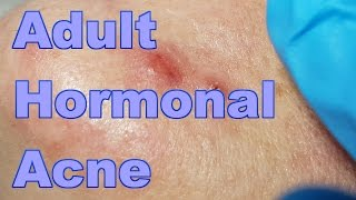 ADULT HORMONAL ACNE - Session #1