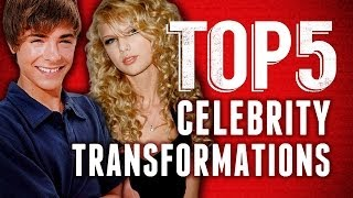 Best Celebrity Transformations: Zac Efron, Taylor Swift, Harry Potter Cast