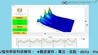 【勝宏精密】3D EEG生技公司專案
