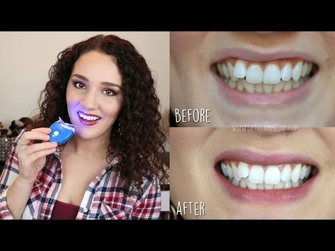 Best Affordable Teeth Whitening Kit - Smile Bright Review