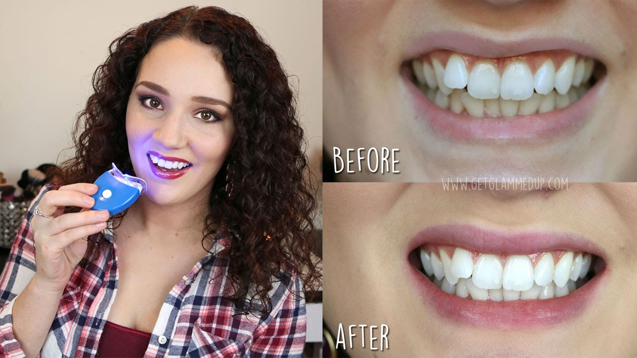 Best Affordable Teeth Whitening Kit Smile Bright Review Youtube