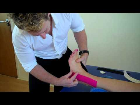 How to treat an Ankle Inversion Sprain - Kinesiology Taping to stabilise ligaments