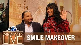 AMAZING Smile Makeover Reveal
