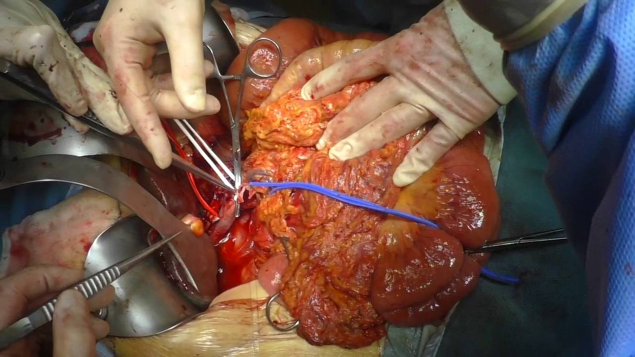Superior Mesenteric Vein Resection During Whipple Youtube