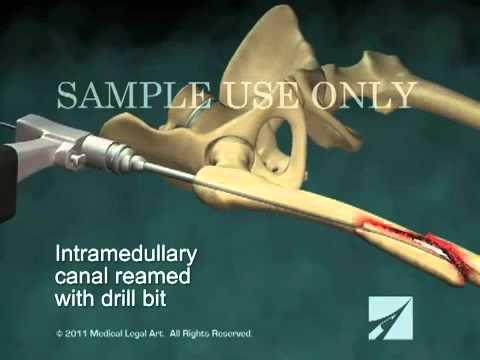 Чрезвертельный перелом - Травматология и ортопедия