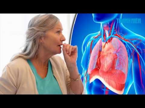 Ung Thư phổi - dấu hiệu nhận biết và triệu chứng bệnh ung thư phổi