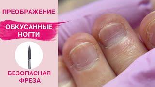 Наращивание ногтей на обкусанные ногти Маникюр безопасная фреза