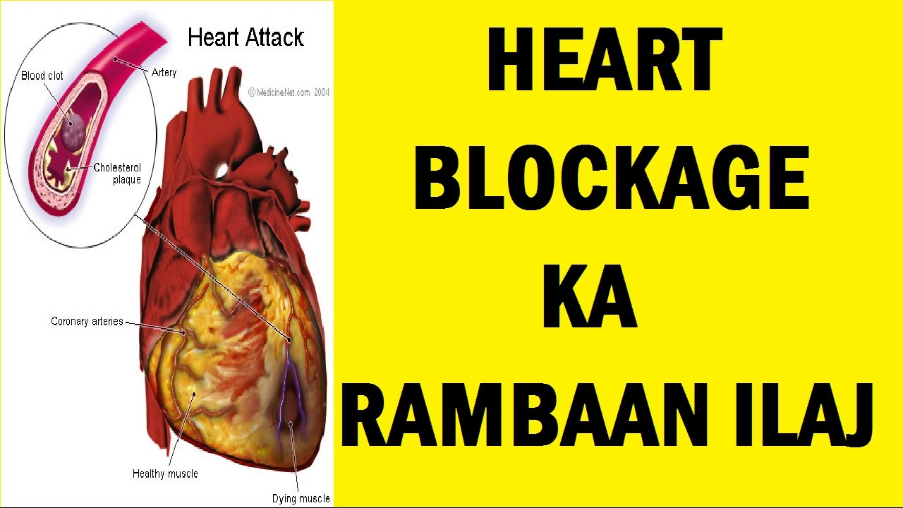 Heart Blockage Treatment Without Surgery In Hindi Youtube
