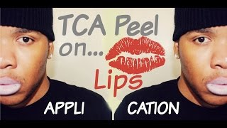 tca chemical peel on lips application   session 3