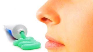 remodelage du nez sans chirurgie