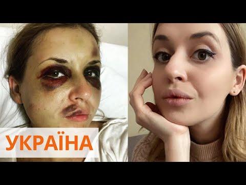 Избиение Анастасии Луговой: